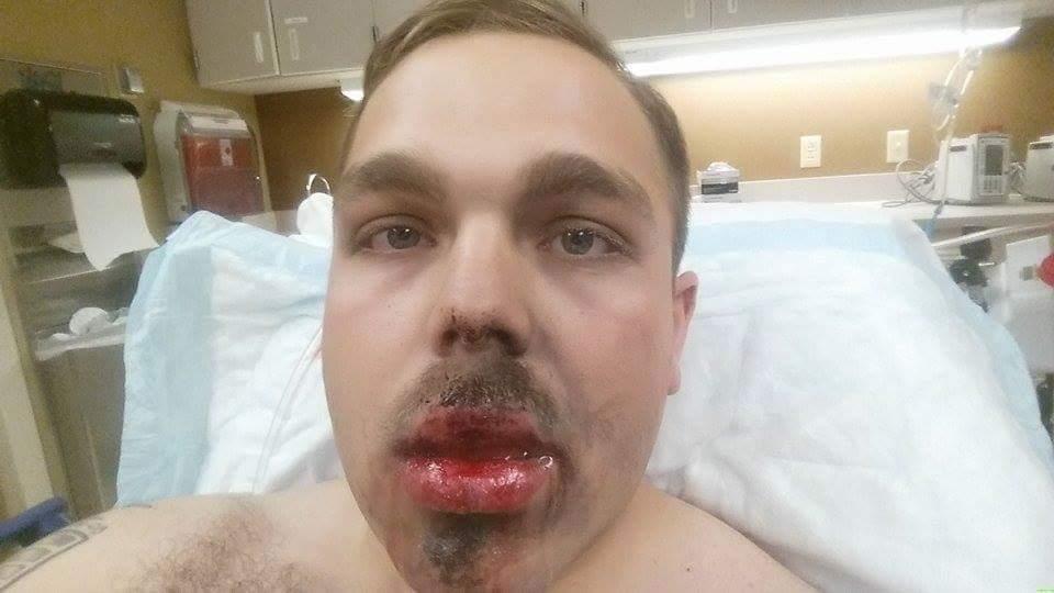 Электронная сигарета взорвалась во рту курящего