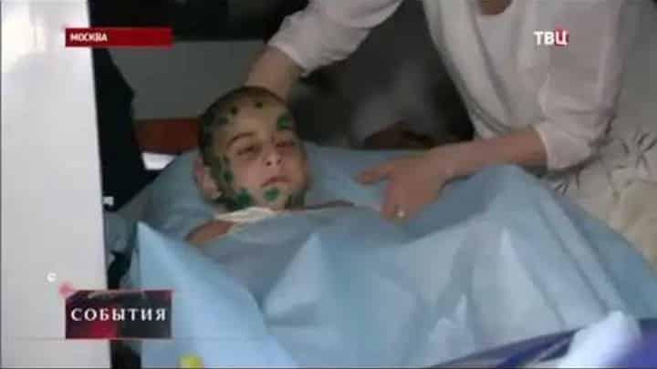Аиша из Ингушетии: врачи ампутируют правую руку. Избитую девочку из Ингушетии хотят удочерить десятки семей