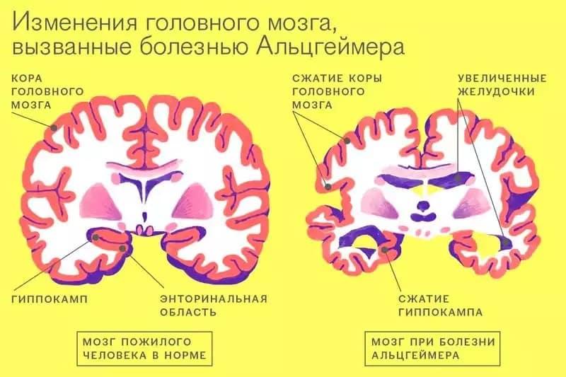 Болезнь Альцгеймера: ученые выдвинули новую теорию появления. Болезнь Альцгеймера и лизосомы