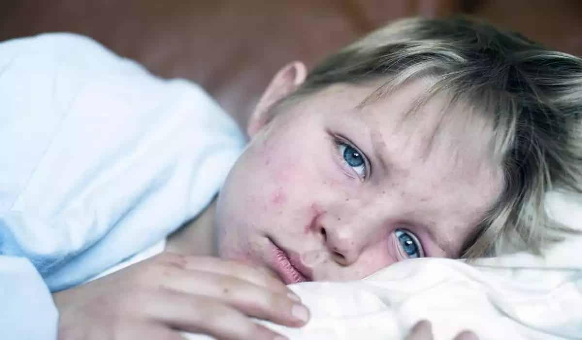 Корь в Санкт-Петербурге, вспышка в 2019 году: симптомы кори, как защититься