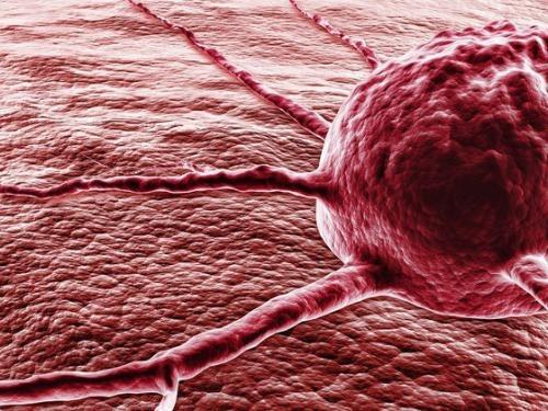 10 возможных признаков онкологического заболевания