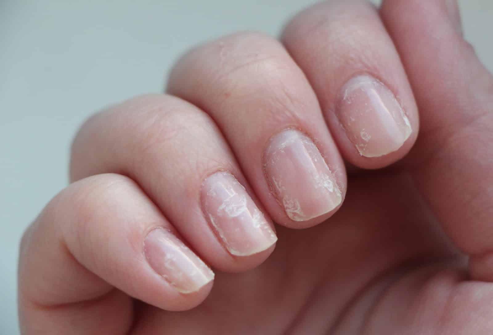 Ногти слоятся и ломаются: что является причиной данного недуга