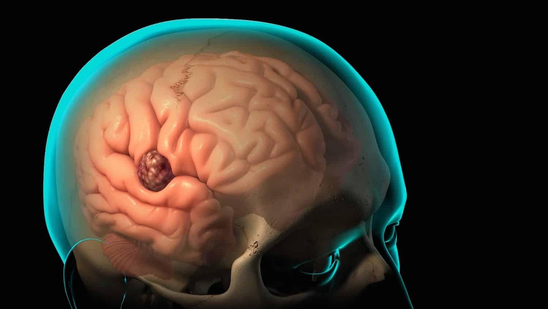 Рак головного мозга: симптомы и профилактика, ЭКО влияет или нет, как выявить на ранних стадиях