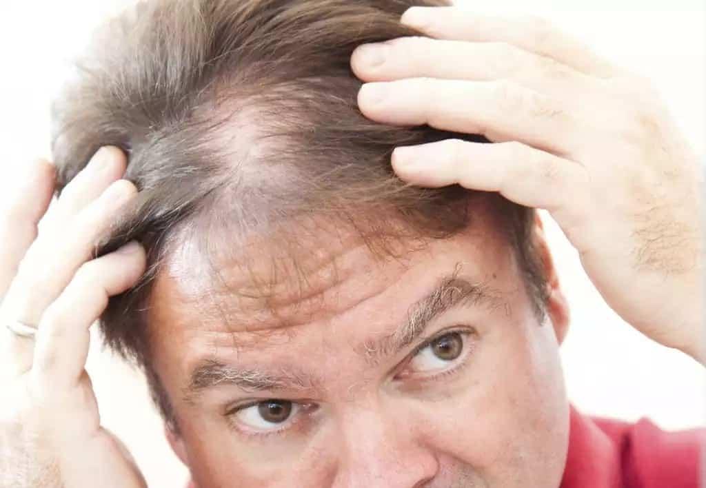 Почему мужчины лысеют: причины появления лысины у мужчин