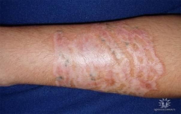 Шрам после удаления тату лазером: чем мазать, как ухаживать