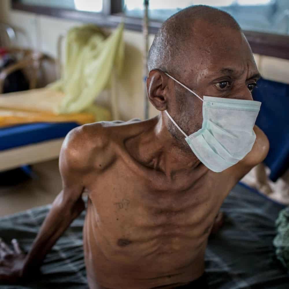 Смертность от туберкулёза в нашей стране сократилась в три раза