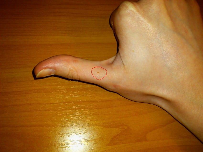 Секреты, которые выдадут родимые пятнышки на пальцах