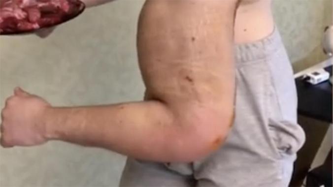 Кирилл Терешин решился на операцию: как теперь выглядят его «Руки-базуки»
