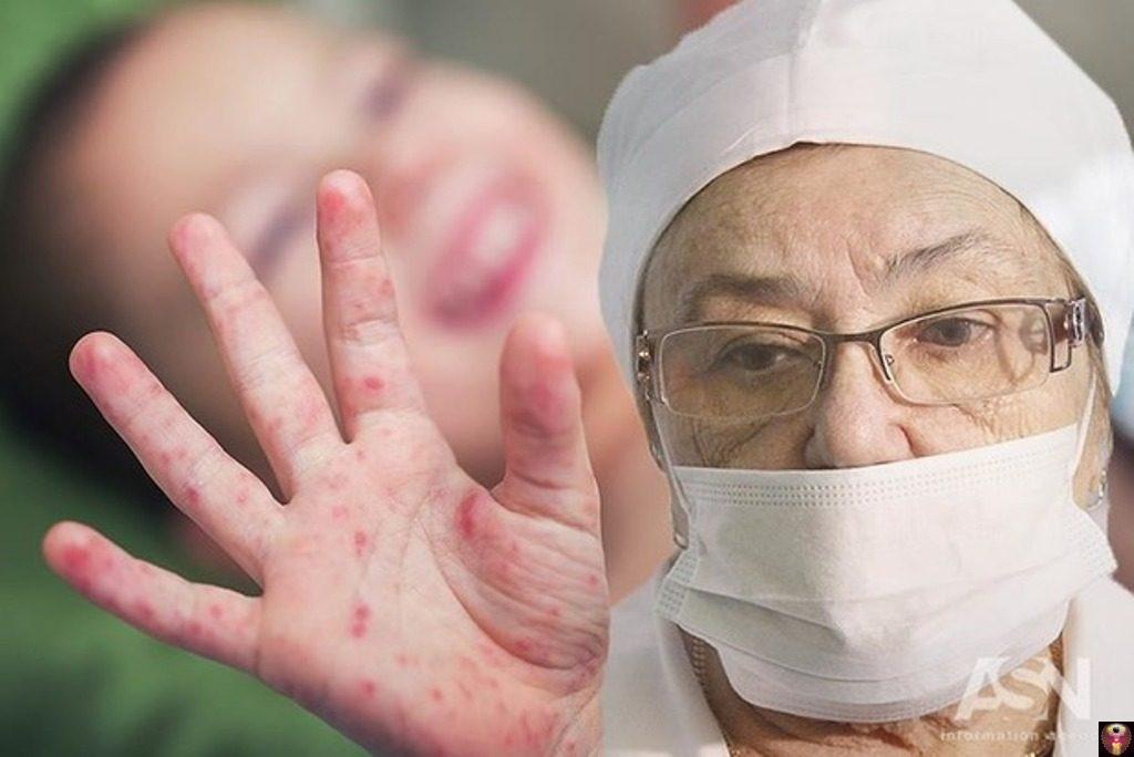 Эпидемия кори может вспыхнуть в России в любой момент: свежие новости на 29 декабря